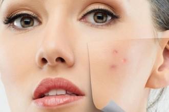 acne specialisatie